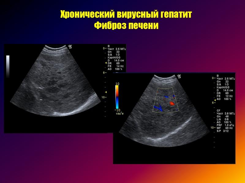 >Жировая инфильтрация печени  (очаговая форма) Митьков В.В.,1996